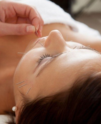 Facial cosmetic acupuncture